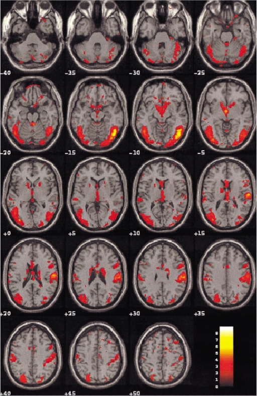 Blood oxygenation level dependent-MR images on the 19 contiguous axial slices associated with visual sexual stimulation in a 42-year-old healthy volunteer. Color-coded pixels on the activation maps were scaled to the range between the cutoff-threshold (p < 0.05) and the highest t-score, 8.96. Prominent activation areas involve the occipital, temporal, cerebellar gyri, and the limbic systems associated with the regulation of sexual behaviors.
