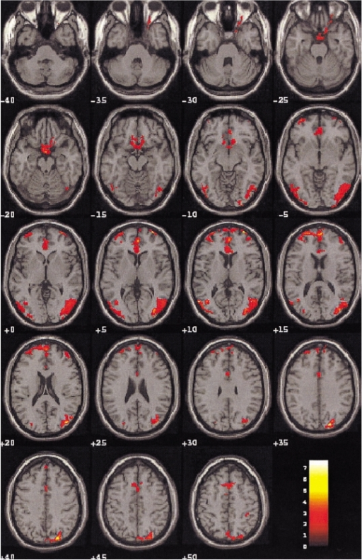 Blood oxygenation level dependent-MR images on the 19 contiguous axial slices associated with visual sexual stimulation in a 40-year-old patient with depression. Color-coded pixels on the activation maps were scaled to the range between the cutoff-threshold (p < 0.05) and the highest t-score, 7.67. Activation is limited in the frontal and occipital cortices; any other limbic areas except part of the cingulate gyrus were not apparently activated in this case.