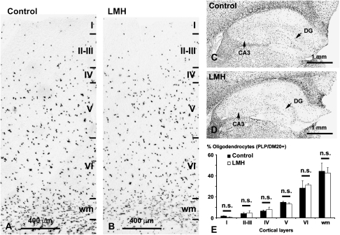 PLP/DM20 in situ hybridization showing the distribution of oligodendrocytes both in the parietal cortex (A, B) and hippocampus (C, D) in control and LMH pups at P40. (E) Histogram showing the percentages of PLP/DM20-labeled cells in control and LMH pups. No statistically significant differences (n.s.) were found between normal and LMH pups (n = 6 for each group) in the different layers and white matter (wm).