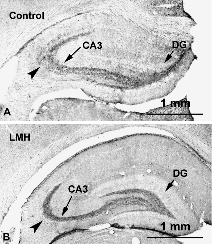 Photomicrographs of coronal sections of the hippocampus showing ZnT-3 labeling in control (A) and LMH (B) pups at P40. A decreased intensity of the immunolabeling can be observed in the stratum oriens (arrowhead) in LMH pups compared with controls. DG, dentate gyrus.