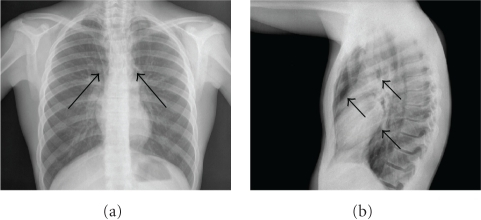(a) Posteroanteriorchest radiograph that shows the mediastinal reflections of the pleura separated from the pericardium by a lucent band of air representing pneumomediastinum (arrows). (b) Lateral chest radiograph that shows the outer border of the ascending and descending thoracic aorta, which are underlined by mediastinal free air collection (arrows).