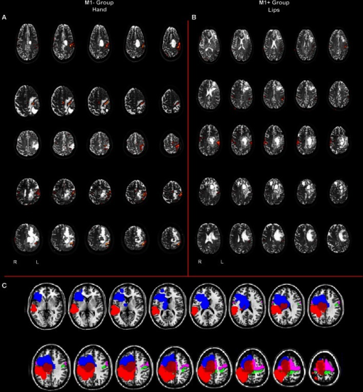 (A) Whole brain analysis results for the group of patients with lesions involving M1 (M1−) performing hand clenching movements vs. rest and (B) activation maps for the group of patients with lesions sparing M1 (M1+) performing lip movements vs. rest. The two types of movement have been selected in this image to highlight the close location of the M1− to the hand representation area, as evidenced by the activation cluster, and the vicinity of the M1+ to the lip representation area, as evidenced by the activation cluster. Data were thresholded at p < 0.05 cluster corrected (Z > 2.3). (C) Overlapping of the ROIs drawn on the patients' lesions after normalization (in blue for the M1+ and in red for the M1−) and of the mask created by using the Anatomy Toolbox and the maximum probability maps (MPS) of the left and right M1 (in green) and of the left and right Pm cortex (in pink).
