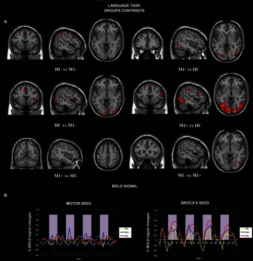 (A) Activation maps for whole-brain GLM analysis related to verb generation task vs. rest. The contrast data between groups are presented at a threshold of p < 0.05, cluster corrected for Z > 2.3. (B) Average BOLD signal time-course extracted from the motor seed ROI (left) and from the Broca's seed ROI (right) during the verb generation task are displayed for all the groups separately (M1−, lesions involving the primary motor cortex; M1+, lesions sparing M1; HC, healthy controls).