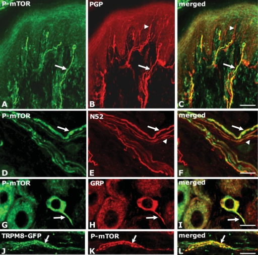 Distribution of activated mTOR (P-mTOR) immunoreactivity in peripheral sensory nerve fibers in the rodent cutaneous tissue. (A–F and J–L) Confocal images of 40 μm thick frozen sections cut perpendicular to the plantar surface of the rodent hindpaw. (A–C) Arrows indicates co-localization of P-mTOR (green) and a general marker of sensory nerve fibers PGP (red) in the footpad of rat. Arrow heads indicate a fine fiber (most likely a C-fiber) entering the epidermis but not P-mTOR positive. Scale bar = 70 μm. Modified from Jimenez et al. (2008). (D–F) Confocal images of a nerve bundle in the dermis co-stained with P-mTOR (green) and an A-fiber marker N52 (red). Note that all P-mTOR positive fibers are stained but that not all A-fibers are co-labeled. Scale bar = 15 μm. (G–I) Confocal images of rat lumbar DRG stained with P-mTOR (green) and gastrin-releasing peptide, a marker of itch fibers (GRP, red). Note the small size of the cell body and the extension of P-mTOR immunoreactivity into the proximal axon (arrow). Scale bar = 15 μm. (J–L) Confocal images of a bundle of nerve fibers in the dermis of mouse cutaneous tissue stained for P-mTOR (green) and TRPM8-GFP (red) showing some co-expression (arrow). Scale bar = 15 μm. [Color figure can be viewed in the online issue, which is available at wileyonlinelibrary.com.]