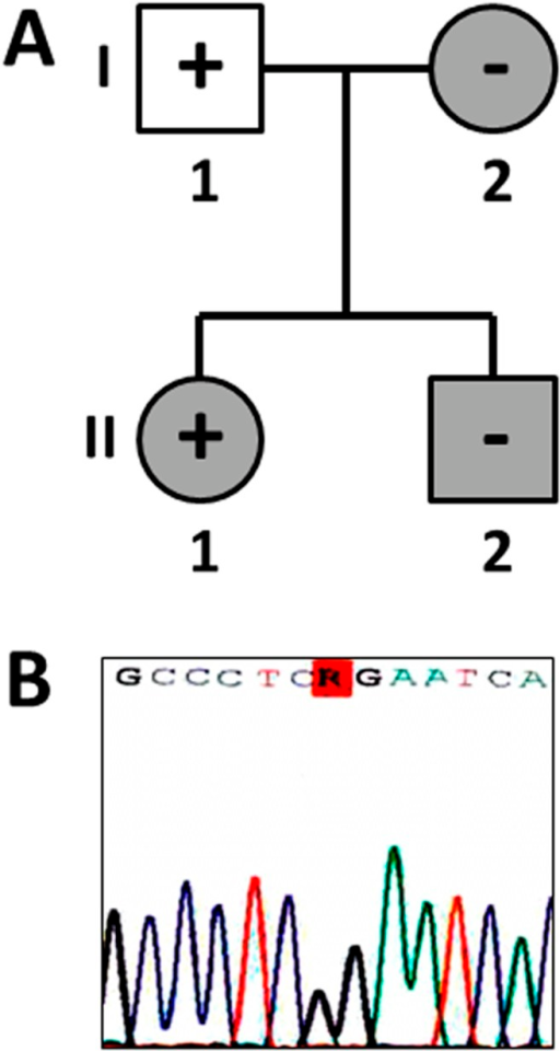 Pedigree and electropherogram.(A) Index case is II.1. White round/squares indicate healthy status after clinical evaluation. Grey round/squares indicate LQTS after clinical evaluation. Plus sign indicates carrier of genetic variation. Minus sign indicates non-carrier of the genetic variation. (B) Electropherogram of the genetic variation identified (p.R20729G_TTN).
