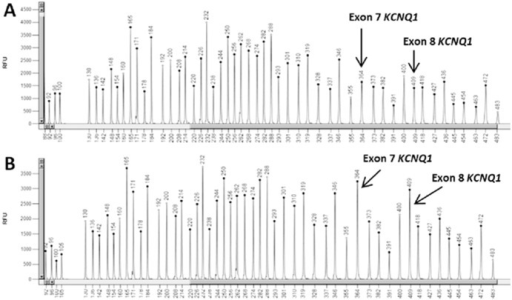 MLPA capillary electrophoresis pattern.(A) index case and (B) her healthy father, both analysed with SALSA MLPA probemix P114-B2 Long QT. Comparing both profiles, the patient's deletion of exons 7 and 8 of the KCNQ1 gene can be appreciated.