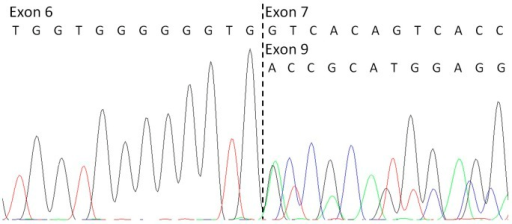 Partial electropherogram of the sequence of the cDNA of the proband's affected brother.It confirms the deletion of exons 7 and 8 of KCNQ1 at mRNA level.