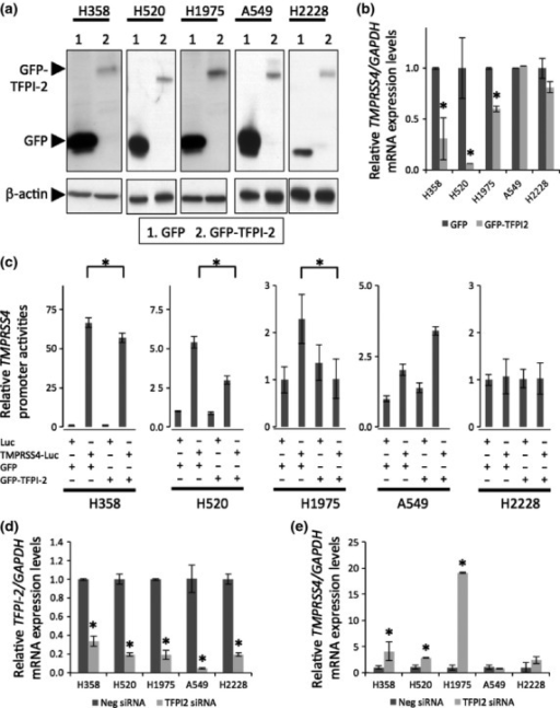 TFPI-2 downregulates the expression of TMRPSS4 in lung cancer cells. (a) NCI-H358, NCI-H520, NCI-H1975, A549, and NCI-H2228 cells were transfected with GFP plasmid alone (lane 1) or with GFP-TFPI-2 (lane 2) for 48 h, and protein levels of TFPI-2 were detected with α-GFP antibody. (b) mRNA expression levels of TMPRSS4/GAPDH in the same experiments as (a) were detected with RT-PCR. Cells treated with GFP plasmid were calculated as 1 in (b). (c) Five cell lines were co-transfected with a GFP or GFP-TFPI-2 expression plasmid and a Luc or TMPRSS4-Luc reporter plasmid for 24 h together with an internal control RL-TK plasmid, and the effect on the reporter activity of TMPRSS4 by TFPI-2 was evaluated by the luciferase assay. (d, e) NCI-H358, NCI-H520, and NCI-H1975 cells were transfected with negative control or TFPI-2 siRNAs for 48 h, and mRNA expression levels of TFPI-2/GAPDH (d) and TMPRSS4/GAPDH (e) were evaluated by RT-PCR. Each value from cells treated with negative siRNA was calculated as 1. *P < 0.05 compared to GFP alone or to negative control siRNA. All experiments were carried out three times independently. Representative data are shown for Western blotting (a).