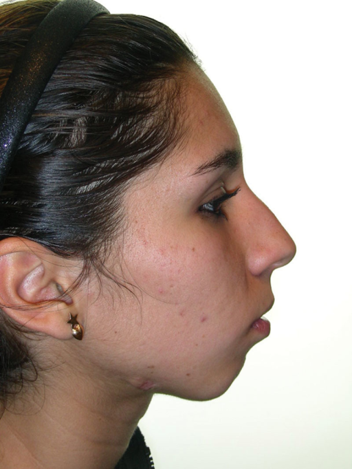 Reconstruction of right mandibular ramus with iliac crest graft and orthognathic surgery at the same time (patient 6). Profile facial photograph: before surgery.
