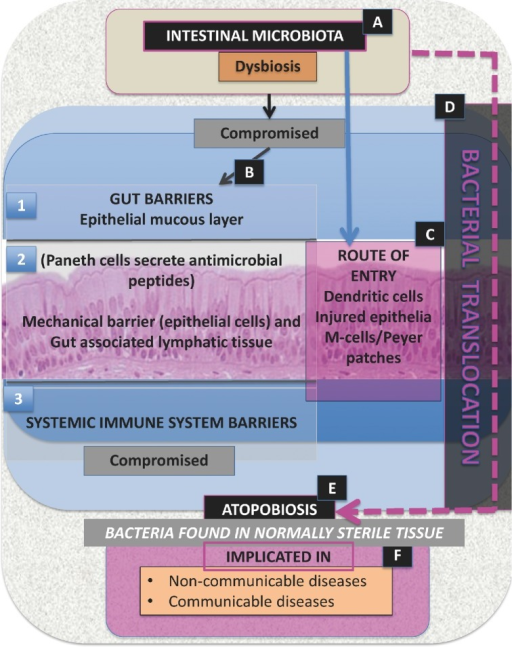Schematic representation of dysbiosis, bacterial translocation and atopobiosis. (A) When intestinal microbiota are associated with dysbiosis, (B) the gut barrier (1 and 2) becomes compromised; this leads to (C), a route of entry via the gut epithelia causing (D) bacterial translocation. Bacterial translocation is also associated with a compromised systemic immune system barrier (3). Therefore, intestinal microbiota dysbiosis (A) followed by bacterial translocation (D) results in (E) atopobiosis. (F) The results of bacterial translocation are seen in various conditions (see Table 4).