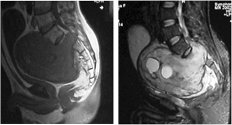 The magnetic resonance imaging (MRI) of patient C after gelatin sponge particle (GSPs) implantation taken in July 2014