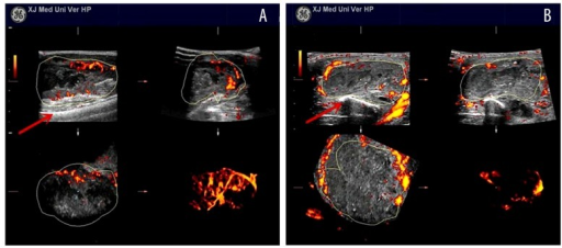 3D-PDA images of two groups after radiotherapy. The control group displayed some vessel network with tortuous pathways inside the tumor, and peripheral thick vessels were observed (A). In the test group, tumor vascular structures decreased significantly, and only dot- and line-like vessels were observed around the tumor (B). Red arrow: femur.
