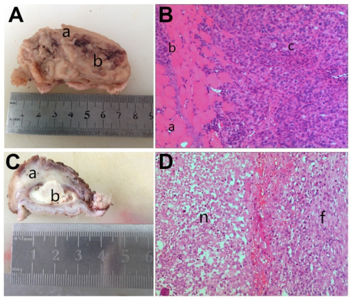 Histological changes after radiotherapy at GTVboost area. In the control group, (A) a: tumor invasion of striated muscles, b: tumor tissues. (B) a: healthy muscle tissue, b: tumor invasion of striated muscles, c: tumor cells (×100). In the test group, (C) a: necrotic zone, b: tumor parenchyma necrosis, (D) n: large areas of necrosis, unclear cells boundaries with the surrounding tissues, f: fibroplasia (×100).