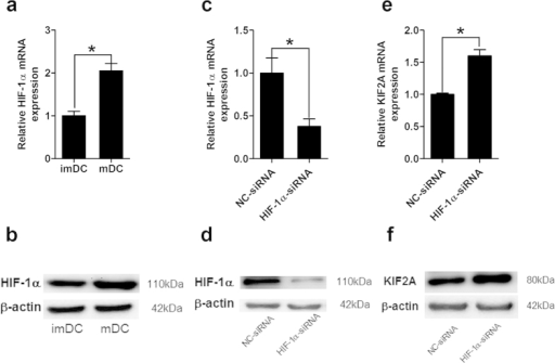 Knockdown of HIF-1α by specific siRNA up-regulated KIF2A mRNA expression in hypoxic mature DCs.(a,b) DCs were induced under hypoxia and matured by LPS. (a) Expression of HIF-1α mRNA was accessed by qRT-PCR. Results are shown as fold changes relative to mRNA levels in hypoxic imDCs and represent the average of three independent experiments. (b) Protein level of HIF-1α expression in imDCs and mDCs was detected by western blot with specific antibody. (c–f) Hypoxic imDCs were either electroporated with HIF-1α siRNA or negative control (NC) siRNA and LPS was added to induce DCs maturation. After 48 h, HIF-1α(c) or KIF2A (e) mRNA expression in mDCs was determined by qRT-PCR. The results are expressed as the fold mRNA levels of negative control siRNA treated DCs (arbitrarily defined as 1) of three independent experiments. Western blot was also performed to analyze the protein expression of HIF-1α (d) and KIF2A (f). *P < 0.05.