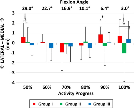 Mediolateral shift the of tibia with respect to the femur in anterior cruciate ligament (ACL)–deficient patients with isolated ACL deficiency (group I), combined ACL and medial meniscus injuries (group II), and combined ACL and lateral meniscus injuries (group III). *Statistically significant difference (P < .05).