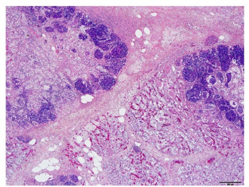 Histological appearance of the affected lung tissue, fibrinous bronchopneumonia with large alveolar necrotic areas filled with neutrophils and debris. Interlobular septa are markedly expanded with fibrin, edema, and lesser numbers of neutrophils. Hematoxylin and eosin, 4x, bar = 200 μm.