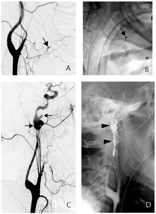 A-B, group 1 patient. Angiogram of the left carotid artery showing a pseudoaneurysm in the lingular artery (A, arrow). It was embolized by the injection of acrylic adhesive through a microcatheter (B, arrow). C-D, group 2A patient. Angiogram of the left carotid artery showing a complex pseudoaneurysm in the distal cervical ICA (C, arrows). Embolization of the vascular lesion and the ICA with fiber coils was noted in the control angiogram (D, arrowheads).