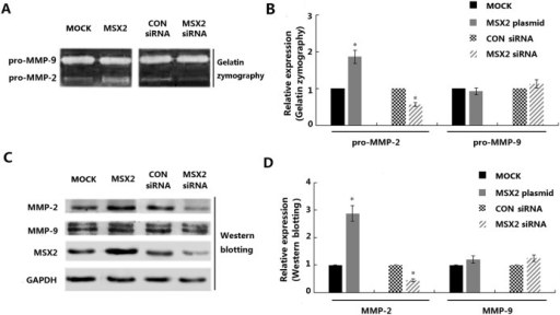 Modulation of MSX2 expression in HTR8/SVneo cells influences the gelatinolytic activities of pro-MMP-2 and MMP-2.(A) Serum-free culture medium was harvested from cells transfected with the MSX2 overexpression vector and the MSX2 siRNA, as well as from the control cell populations, and subjected to gelatin zymography assay analysis. (B) Graphical representation of the zymographic results shown in A. (C) HTR8/SVneo cells transfected with plasmids or siRNA molecules were subjected to western blot analysis using the indicated antibodies. (D) Graphic depiction of the western blot results (three independent experiments). GAPDH was used as a loading control for western blot analyses (Mann Whitney test; *P < 0.05; n = 3).