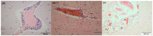 Histopathology (Grevy's zebra, CG3) showing non-suppurative encephalitis represented by mononuclear perivascular cuffs in the gray matter of the cerebral cortex (a) and forebrain (b); Hematoxilin–eosine (HE) staining. Meningeal perivascular infiltration of inflammatory cells (arrows) (c); HE staining.