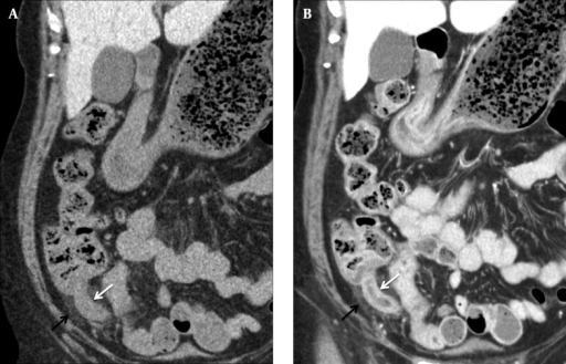 A, Coronal NE-LDCT and B, Coronal CE-SDCT images of a 64-year-old woman with acute appendicitis show dilated appendix (white arrows), wall thickening, and surrounding fat stranding (black arrows). Reader 1 and reader 6 assigned a score of 5 and 1 (definitely not appendicitis) for the diagnosis of appendicitis on NE-LDCT and a score of 5 and 5 on CE-SDCT. The BMI was 23.6 kg/m2. The dose-length product was 239.6 and 647.9 mGy cm, respectively.