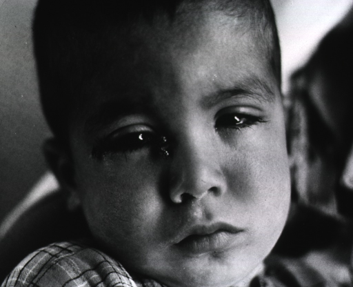 <p>Close-up of the face of a young child with flies around his eyes.</p>