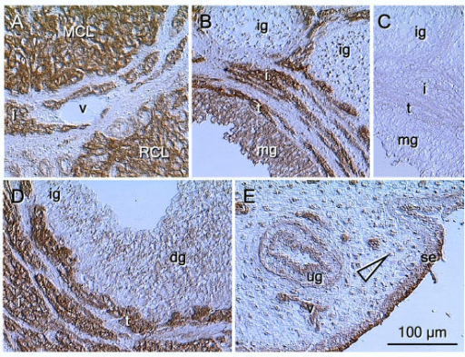 LHR expression in the rat ovaries and uterus. A) Strong LHR immunoreactivity is apparent in mature (MCL) and regressing CL (RCL) and interstitial cells (i). Note unstained vessels (v). B) Strong staining of theca interna (t) and weaker staining of mature granulosa cells (mg) in preovulatory follicle. Note scarce cytoplasmic granules with LHR immunoreactivity in immature granulosa cells (ig). C) Control. D) Increased staining during granulosa cell differentiation (dg) in large antral follicle. E) In the rat uterus, the LHR immunostaining is apparent in the surface epithelium (se), uterine glands (ug) and vasculature (v). Uterine stromal cells show nuclear staining (arrowhead). No hematoxylin counterstain.