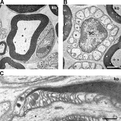 Normal peripheral nerves in mal-deficient mice. Morphology of sciatic nerves from 2.5-mo-old KO mice. EM analysis of cross-sectioned sciatic nerve tissues shows normal myelinated (A) and unmyelinated (B) axons of mal KO mice. (C) Longitudinal section of a sciatic nerve shows normal paranodal morphology in KO. Asterisk indicates an axon. SC indicates a Schwann cell body. Bars: A, 50 μm; B, 1 μm; C, 0.5 μm.
