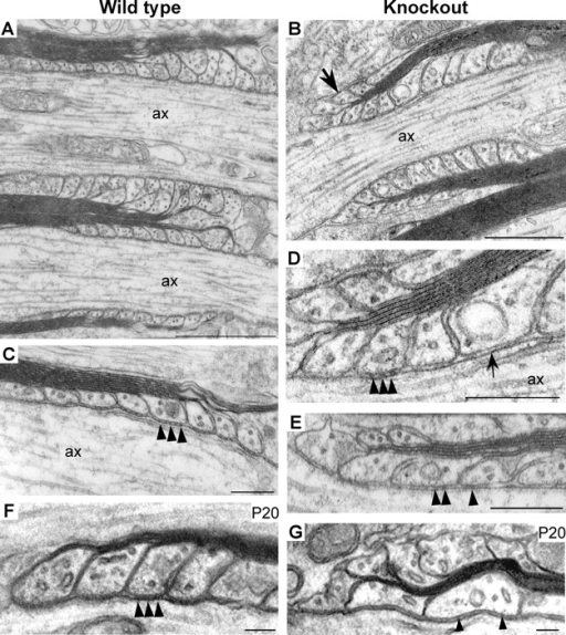 Mal-deficient mice exhibit paranodal abnormalities. EM analysis of longitudinally sectioned optic nerves from adult KO mice revealed numerous disorganized paranodes with everted paranodal loops not adhering to the axon (B, D, E; arrow in B). In WT animals, normal paranodal loop organization was observed (A and C). Transverse bands were regularly detected in WT mice (C, arrowheads), whereas in KO mice transverse bands were usually present but less organized (D and E, arrowheads), or absent under some of the paranodal loops (D, arrow). In the paranode in D, there is only one loop with normal septate-like junctions (arrowheads), whereas the adjacent loops lack intact septa. Analysis of longitudinal sections of optic nerves from P20 WT mice (F) revealed intact paranodes with normal transverse bands (F, arrowheads). Optic nerves of age-matched KO (G), in contrast, contained numerous disorganized paranodes with everted paranodal loops and irregular transverse bands (G, arrowheads). Bars: A, 1 μm; B, 0.5 μm; C, 0.2 μm; D, 0.2 μm; E, 0.25 μm; F and G, 0.1 μm.