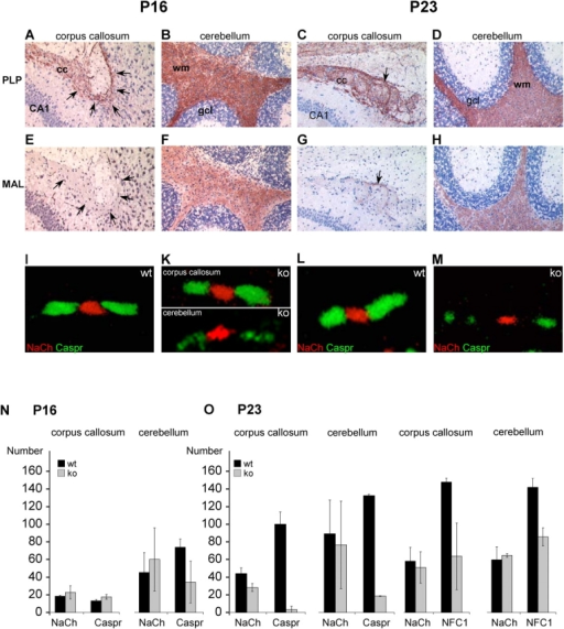 Onset of paranodal alterations correlates with MAL expression. Immunohistochemical analysis of sagittal brain sections for PLP (A–D), MAL (E–H), and confocal localization analyses of NaCh (I–M, red) and Caspr (I–M, green) on consecutive tissue sections in WT (A–I and L) and KO mice (K and M). At P16 in WT mice, myelination had already started in the corpus callosum as seen by PLP expression (A, arrows demarcate the border between corpus callosum and hippocampus), but MAL is not detectable yet (E). Clustering of Caspr in paranodes is normal in KO mice (K, top), whereas in the cerebellum myelination is more advanced, as seen by MAL expression (F); the immunofluorescent signal for Caspr is reduced (K, bottom). In contrast, at P23 MAL expression starts in corpus callosum (G, arrow) and Caspr is strongly reduced in paranodes of KO mice (M). PLP expression in KO mice occurred normally (not depicted), comparable to WT mice (C, arrow). Quantification of the confocal localization analyses of NaCh, Caspr, and NF in corpus callosum and cerebellum at P16 (N) and P23 (O). Immunofluorescent particles larger than 0.7 μm3 were quantified in two WT and KO mice. Note that at P16, total amounts of Caspr were reduced in cerebellum of KO mice, but not in corpus callosum; no differences were observed for NaCh. Error bars: SD from two animals per age and tissue area. At P23, strong reduction of Caspr and NF was observed in cerebellum as well in corpus callosum. For quantification, the pan-NF antiserum was used, which recognizes the 186 (nodal) and 155 (paranodal) isoforms; therefore, the residual amounts of NF-immunofluorescent intensity can be attributed to the nodal 186 isoform, which did not show differences between WT and KO mice (not depicted). wm, white matter; gcl, granule cell layer; CA1, pyramidal cell layer (hippocampus); cc, corpus callosum.
