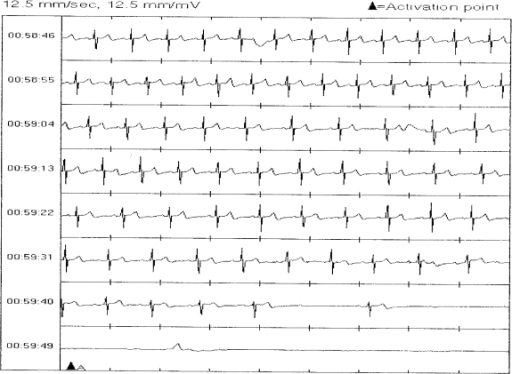 Asystole on a tracing downloaded from ILR.