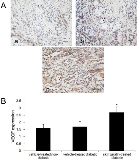 Expression of VEGF in wound tissue at day 14 after wounding in (a) vehicle-treated non-diabetic rats; (b) vehicle-treated diabetic rats and (c) skin gelatin-treated diabetic rats. Statistical analysis showed that the extent immunoreactivity of VEGF in the wound areas skin gelatin-treated diabetic rats is greater than that of the vehicle-treated diabetic group. * P < 0.05—significance of the difference between the mean VEGF in the wound area of skin gelatin-treated diabetic rats and that of vehicle-treated diabetic rats (magnification 200×; V, vessel).