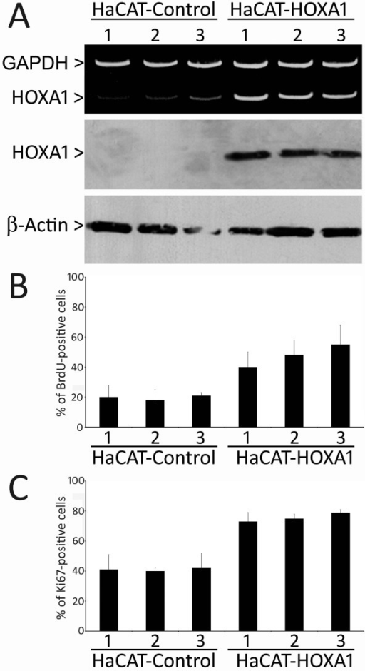 Overexpression of HOXA1 induces cellular proliferation. (A) Representative duplex RT-PCR and western blot analysis of HOXA1 in HaCAT-Control and HaCAT-HOXA1 transfectants, revealing an increase in HOXA1 levels in overexpressing clones. Assays measuring BrdU incorporation (B) and Ki67 expression (C) demonstrated that HOXA1 overexpressing cell lines have a statistically significant increase in proliferation as compared to control cells (for BrdU index p < 0.01 between groups, and for Ki67 index p < 0.05 between groups). The labeling index of BrdU and Ki67 corresponds to the mean percentage of positive cells of 3 experiments for each cell line.