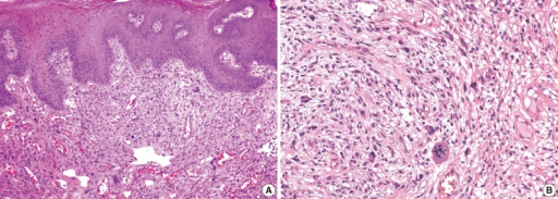 microscopic findings of a cellular pseudosarcomatous fi open i