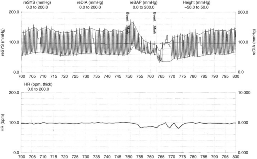 Diminished heart rate response to phases II and IV of Valsalva manoeuvre. Event mark: the beginning of the test.