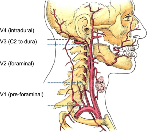 Four Parts Of Vertebral Artery Open I