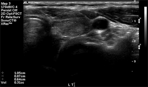 Thyroid ultrasonography showing a solid oval-shaped nodule (0.87 cm) with multiple tiny calcifications in the upper pole of the left thyroid gland.