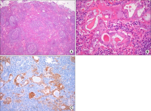 Microscopic findings of metastatic perigastric lymph nodes. (A) Lymph nodes along the lesser curvature showing many glandular structures, suggesting gastric carcinoma metastasis (H&E, ×40). (B) Higher magnification of the tumor cells showing large oval nuclei with ground glass or hypochromatic appearance and abundant eosinophilic cytoplasm, reminiscent of a thyroid papillary carcinoma (H&E, ×400). (C) Immunohistochemical staining for galectin-3 confirms metastasis of thyroid papillary carcinoma in the perigastric lymph nodes (×200).