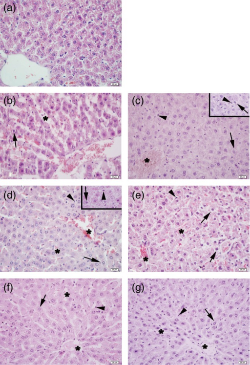 Representative Micrographs Of The Liver Tissue In The E Open I