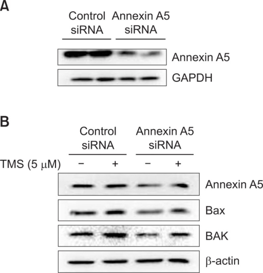 Effect of annexin A5 knockdown on Bax and Bak expression induced by TMS. (A) MCF-7 cells were transfected with annexin A5 siRNA (38 nM) for 48 h. After incubation, cells were harvested and total cellular lysates were prepared. Extracted proteins were resolved by SDS-PAGE (10%) and Western blot analysis was conducted. GAPDH level was determined as loading controls. (B) Cells were transfected with annexin A5 siRNA (38 nM) for 48 h and were then treated with TMS (5 μM) for 48 h. After incubation, cells were harvested and total cellular lysates were prepared. Extracted proteins were resolved by SDS-PAGE (10%) and Western blot analysis was conducted. β-Actin level was determined as loading controls. The data shown are representative of three independent experiments.