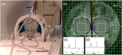 (a) Temperature-controlled phantom positioned in the 3-T scanner, showing points of entry and exit of temperature-controlled water, inner metabolite-containing spheres and fibre-optic thermometer probes leading to the metabolite spheres. (b) The 3-T axial localiser image showing the MRSI excitation volume (white) and central voxels included in the analysis (dotted white line). Typical 1.5-T (c) and 3-T (d) spectra are shown as insets; chemical shifts are displayed relative to the water resonance.