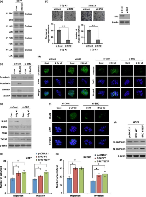 Irradiation promotes epithelial–mesenchymal transition (EMT) through activation of SRC in breast cancer cells. (a) Kinase assay for SFK proteins (SRC, LYN, FYN, and LCK) using enolase as a substrate in MCF7 breast cancer cells after exposure to fractionated radiation. (b) Migration and invasion assay in MCF7 cancer cells transfected with siRNA targeting SRC or scrambled control siRNA (si-Cont) prior to irradiation. (c, d) Western blot analysis (c) and immunocytochemistry (d) for EMT markers E-cadherin, N-cadherin, and vimentin in MCF7 cancer cells transfected with siRNA targeting SRC or scrambled control siRNA prior to irradiation. (e, f) Western blot analysis for EMT transcription factors SLUG, SNAIL, ZEB1, and TWIST (e), and immunocytochemistry for EMT transcription factor SLUG (f) in MCF7 cancer cells transfected with siRNA targeting SRC or scrambled control siRNA prior to irradiation. (g, h) Migration and invasion assay in MCF7 (g) and SKBR3 (h) cancer cells transfected with SRC WT, mutant form SRC Y527F, or control vector pcDNA3.1. (i) Western blot analysis for E-cadherin and N-cadherin in MCF7 cells transfected with SRC WT, mutant form SRC Y527F, or control vector pcDNA3.1. β-actin was used as a loading control. Error bars represent mean ± SD of triplicate samples. *P < 0.05; **P < 0.01. Cont, control; IP, Immunoprecipitation.