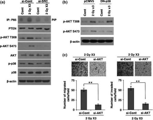 Radiation-activated SRC transduces intracellular signaling of phosphatidylinositol 3-kinase/protein kinase B (PI3K/AKT) and p38 MAPK to increase migratory and invasive behavior. (a) PI3 kinase assay and Western blot analysis for phosphorylation status of AKT and p38 MAPK in MCF7 cancer cells transfected with siRNA targeting SRC or scrambled control siRNA (si-Cont) prior to irradiation. (b) Western blot analysis for phosphorylation status of AKT in MCF7 cancer cells transfected by dominant negative (DN)-p38 or control pCMV5 prior to irradiation. (c) Migration and invasion assay in MCF7 breast cancer cells transfected with siRNA targeting AKT (si-AKT) or scrambled control siRNA prior to irradiation. β-actin was used as a loading control. Error bars represent mean ± SD of triplicate samples. **P < 0.01. PTEN, phosphatase and tensin homolog. Cont, control.