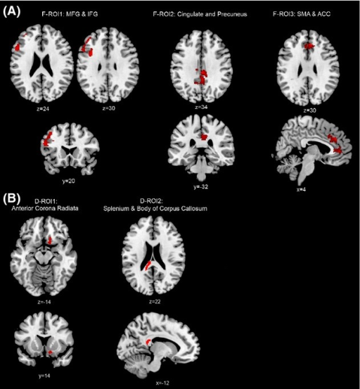 Regions of Interest for fMRI (F-ROI, A) and DTI (D-ROI, B).