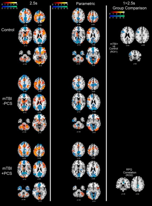 Paced Visual Serial Addition Task fMRI contrast maps. Column 1: Main effect of 2.5s PVSAT block compared to Rest block for Control (top row), mTBI-PCS (middle row) and mTBI + PCS (bottom row). Column 2: Parametric (linearly modeled) increase in BOLD response from least taxing (2.5s PVSAT) to most taxing (1s PVSAT) for Control (top row), mTBI-PCS (middle row) and mTBI + PCS (bottom row). Column 3: Group comparison for the 1 > 2.5s PVSAT contrast showing significant BOLD response differences between mTBI + PCS and Control, MTBI-PCS and Control, as well as between mTBI + PCS and mTBI-PCS. In addition, areas where 1 > 2.5s PVSAT contrast significantly correlates with Postconcussion syndrome symptoms as indexed by the Rivermead Postconcussion Symptoms Questionnaire. Red/Yellow Z scale represents areas with significantly increased BOLD response (Z > 1.9); Blue/Green Z scale represents areas with significantly reduced BOLD response (Z > 1.9). Axial, coronal, and sagittal plane coordinates indicated under each image. Neurological Orientation (R=R).