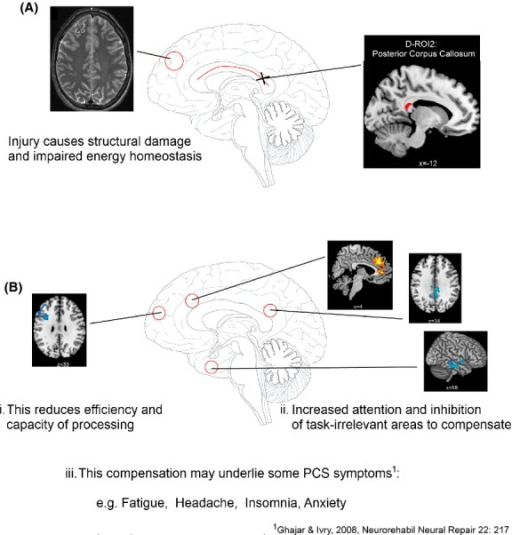 A model illustrating how the structural and metabolic changes after injury (A) may cause the functional changes and compensation mechanisms during high cognitive load (B) which in turn may underlie some of the ongoing PCS symptoms in those participants with mTBI and ongoing PCS.