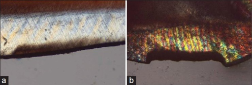 Polarized light micrographs of enamel lesions before (a) and after (b) pH cycling for Group A