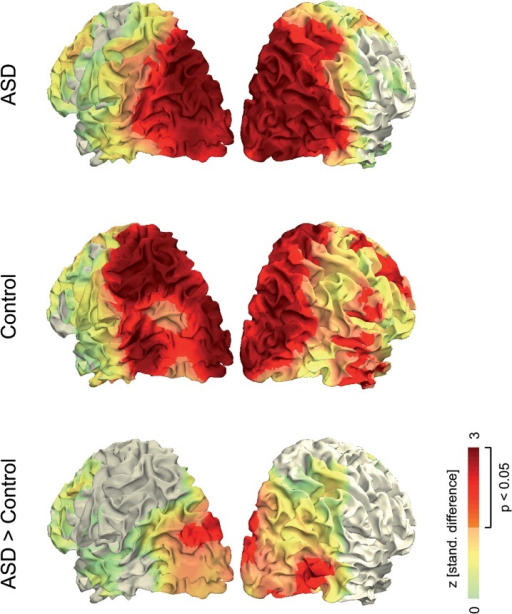 Functional overlays of linear modulation by visual motion strength.Data were averaged across time points (150–350 ms after stimulus onset) and frequencies (60–80 Hz). Projection on a standard MNI cortical surface was performed by weighting the distance between every voxel in the functional data to each surface point on the cortex. Colors represent positive z-values, while negative z-values are not shown (gray color).