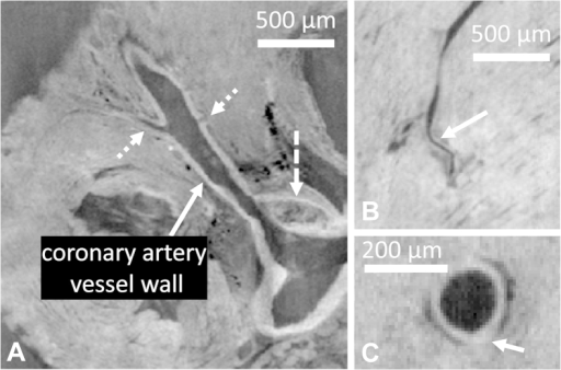 DPC images of the coronary arteries.(A) The left main coronary artery as it leaves the aortic root. The contrast between the vessel wall and the surrounding tissue can be clearly observed. A plaque in the aortic sinus (dashed arrow) and two branches (dotted arrows) are also visible. (B) In the distal part of a left coronary artery, the vessel wall can still be discerned. (C) In an ApoE−/− mouse, a local thickening of the coronary artery wall is occasionally observed, although no plaques were found inside the coronary arteries.