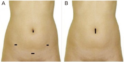 Representative operative incision. (A) Conventional laparoscopic surgery and (B) laparoendoscopic single-site surgery.