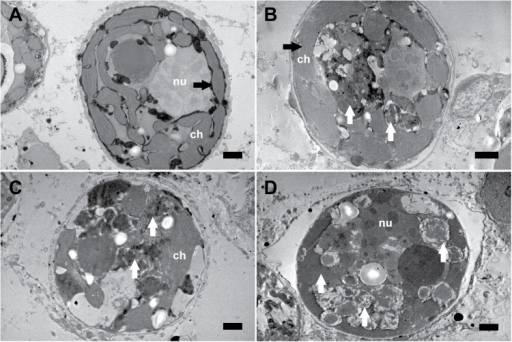 Representative transmission electron micrographs documenting the effects of thermal stress on the internal structure of endosymbiotic Symbiodinium cells within tissue of Acropora millepora.(A) Symbiodinium exposed to 27°C showing intact organelles and thylakoid membranes (black arrow). (B) First signs of degraded internal structures in some Symbiodinium cells after 7 days of heat stress (white arrows). Note the intact structure of the thylakoid membranes (black arrow). (C and D) Symbiodinium exposed to 32°C revealing degraded internal structures (white arrows). Scale bars, 1 μm; ch, chloroplast; nu, nucleus.